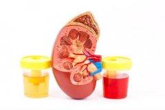 【病种专题】3项指标+3项检查带你解读慢性肾炎